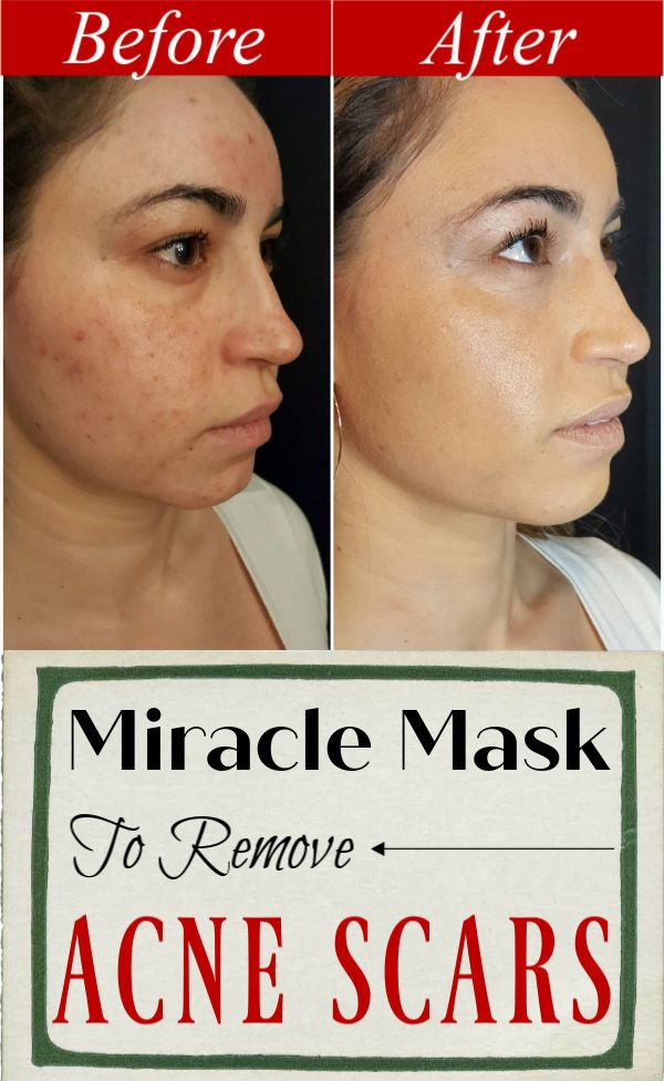 Miracle mask to remove acne, pimples and scars in 10 days.