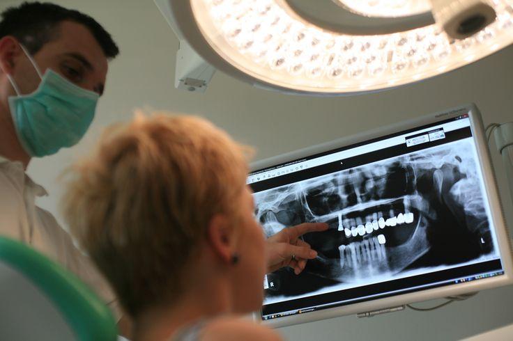 """Zahnimplantate sind eine qualitativ sehr hochwertige Lösung bei fehlenden Zähnen. Sie werden als Ersatz für die fehlende Zahnwurzel in den Kieferknochen eingesetzt und dienen als Träger für den Zahnersatz. ''Der Vorteil im Vergleich zum bisherigen Zahnersatz ist sehr eindeutig"""", erklärt Dr. Zdenko Trampuš, DDS Zahnarzt aus Zagreb, http://zahnarzte-kroatien.com/zahnimplantate-kroatien.html"""