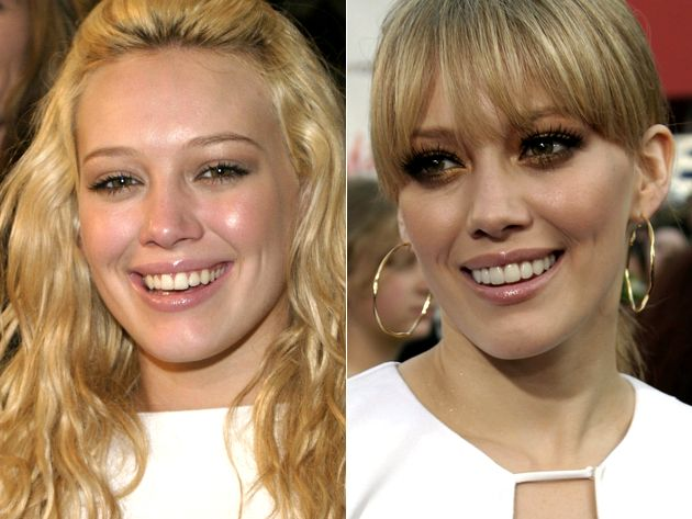 Hilary Duff Veneers Before And After Lovely Teeth