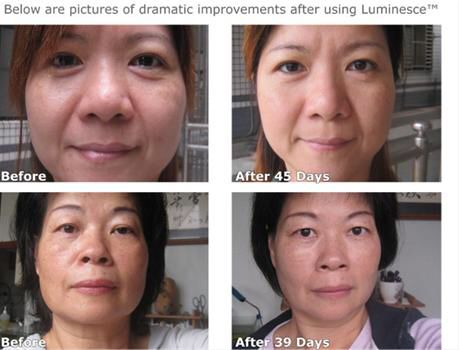 Results. #luminesce #lookyounger #antiaging