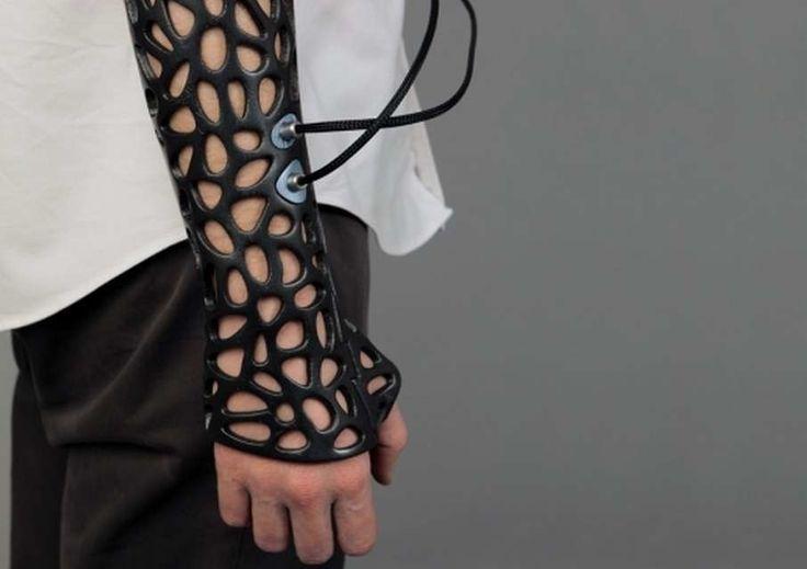 """20 estranhas coisas que a maioria de nós nunca vai ver: O """"gesso"""" do futuro que usa tecnologia ultra-som para curar ossos mais rápido."""