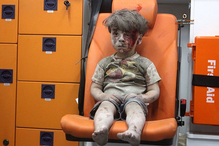 Города | История одной фотографии: вся боль Сирии в снимке маленького мальчика –…