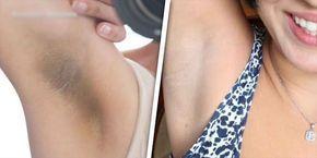 Uno de los problemas que más afecta a las mujeres son las horribles manchas negras en la piel de las axilas, existen muchos productos en el mercado que prometen quitarla, pero son bastante caros. Existen algunos trucos caseros para aclarar las axilas de forma natural, después de hacerlo podrás usar de nuevo esos vestidos o
