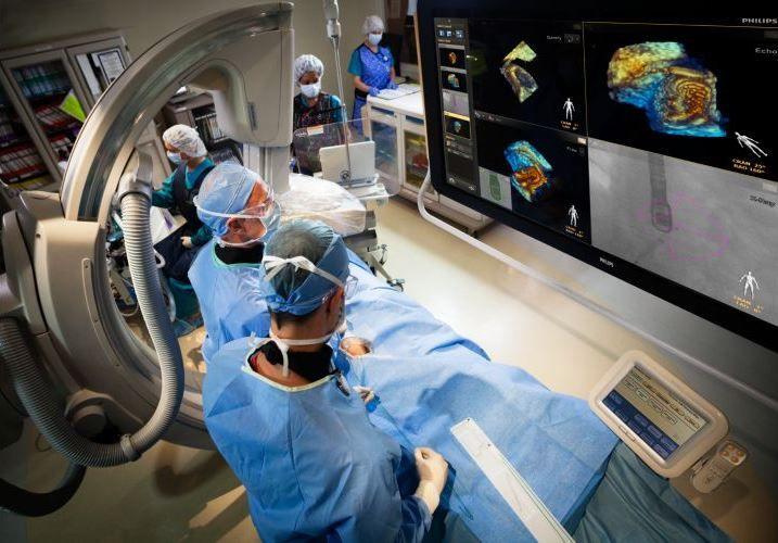 Se realizó con éxito en Monterrey, NL primer procedimiento de Enfermedad Cardíaca Estructural con fusión en tiempo real de imágenes de Rayos X y Ultrasonido 3D - http://plenilunia.com/novedades-medicas/se-realizo-con-exito-en-monterrey-nl-primer-procedimiento-de-enfermedad-cardiaca-estructural-con-fusion-en-tiempo-real-de-imagenes-de-rayos-x-y-ultrasonido-3d/41444/