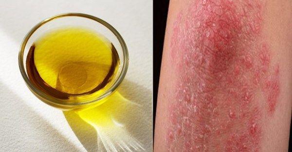 Olej, který vyléčí psoriázu, mykózy, afty, akné a mnohé další kožní problémy