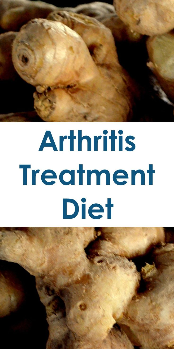 Arthritis Treatment Diet: This Guide Shows The Following; Foods To Avoid For Arthritis, Foods That Cause Arthritis, Foods To Avoid With Osteoarthritis, What Foods Are Good For Your Joints?, Foods To Avoid With Arthritis Mayo Clinic, Arthritis Diet Recipes, Rheumatoid Arthritis Diet Plan, What Is Good For Arthritis Pain, Etc.