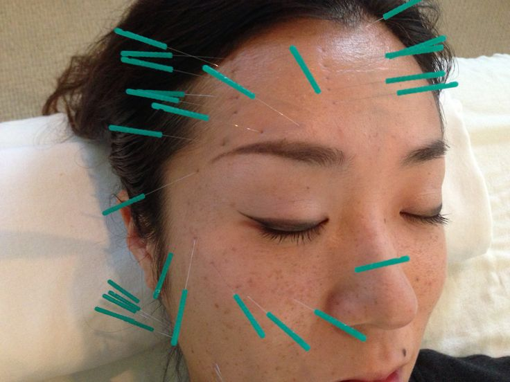 Acupuncture Facial Training - Porn Pics  Movies-3552