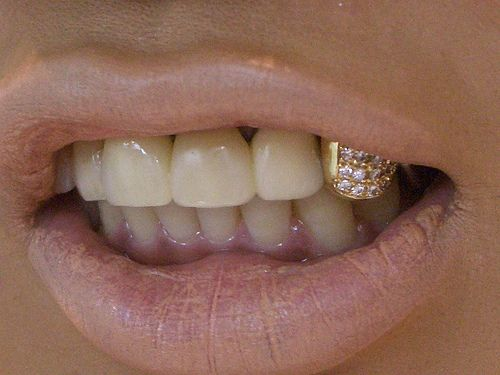 wipe that coverup off your lips girl, I'd kill for some of those. yellow gold pave tooth. amazing.