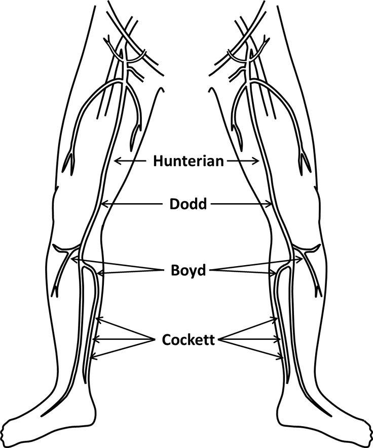lazer varis tedavisi bacaklar