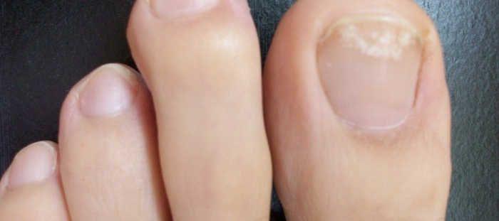 <p>As mulheres são rotineiramente expostas aos fungos pelo uso de unhas de acrílico, mas é os homens que sofrem mais com este problema, mas estes remédios caseiros são destinadas a ambos os sexos. Outros factores que podem aumentar o risco de desenvolvimento de fungos nas unhas são: Tem diabetes. Vestir …</p>