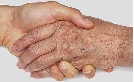 Altersflecken entstehen nicht ohne Grund. Kennt man ihre Ursachen, kann man gege…