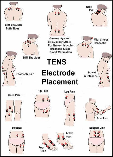 turn off electricity for heALTH | Photo: TENS UNIT THERAPY(Transcutaneous Electric Nerve Stimulation ...