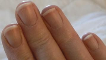 Can You Make Your Nails Grow Faster?