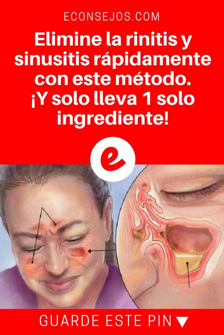 Rinitis remedios | Elimine la rinitis y sinusitis rápidamente con este método. ¡Y solo lleva 1 solo ingrediente! | Este increible y sencillo método es hecho con 1 solo ingrediente que muchos tienen en casa. Aprenda.
