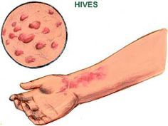 Remedies for Hives- An easy natural cure for hives is to soak a ball of cotton wool in milk of magnesia and apply the lotion all over the rash.  http://www.home-remedies-for-you.com/remedy/Hives.html