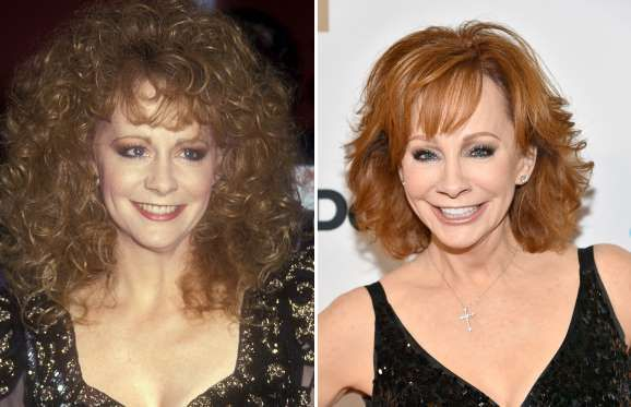 Reba McEntire (1991, 2017) - Barry King/WireImage/Getty Images;  Frazer Harrison/Getty Images for Celebrity Fight Night