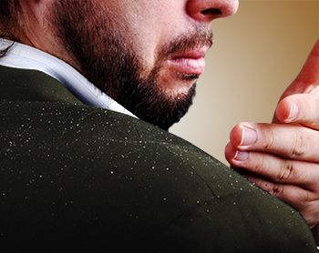Dandruff Overview - Comprehensive overview covers Causes, Symptoms and its Homeopathic Treatment. Start Consultation and Select Your Health Plan.