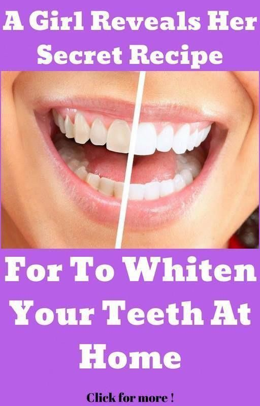 Ein Mädchen enthüllt ihr geheimes Rezept für die Zahnaufhellung zu Hause (V …