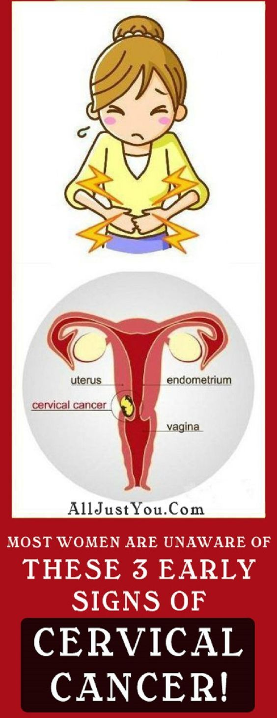 MOST WOMEN ARE UNAWARE OF THESE 3 EARLY SIGNS OF CERVICAL CANCER!