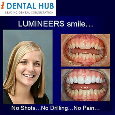 Smile Lift® & Smile Infinity®, Hollywood Smile Lumineers ...
