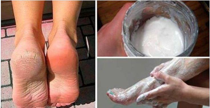 Você está cansado(a) de ter a pele dos pés feia e áspera?Fazer um tratamento na pedicure leva tempo e dinheiro.Então, quem não gostaria de tratar a pele dos pés de uma maneira fácil e prática, com ingredientes que você já tem em casa?