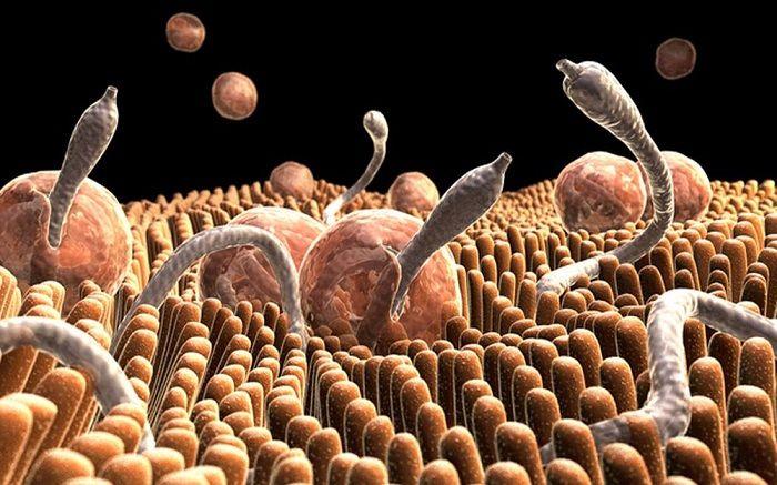 Βότανα και συνταγές που εξαφανίζουν εντερικά παράσιτα - σκουλήκια εκείνοι που έχουν οξυούρους, πρέπει να καταπίνουν το πρωί νηστικοί, μια σκελίδα αμάσητη, σ