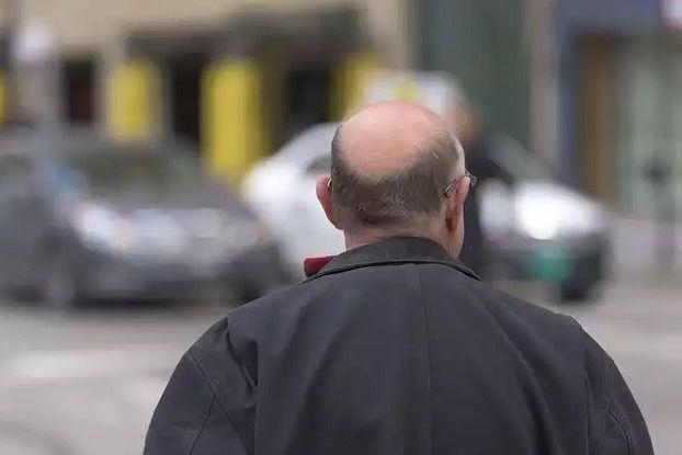 Ученые нашли перспективную терапию, которая стимулирует рост волос на 92%.