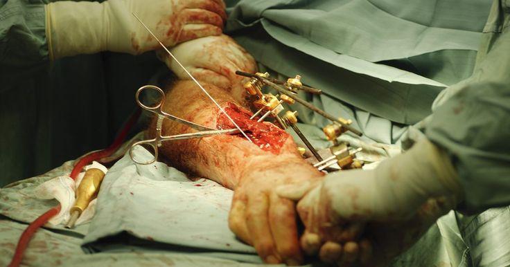 Tratamentos para lesões do plexo braquial. O plexo braquial é um conjunto de nervos que vai do pescoço até a axila, controlando os movimentos musculares e as sensações no ombro, no braço e na mão. As lesões ocorrem quando esses nervos são danificados ou sofrem um trauma, assim como inflamação ou tumores no ombro. Uma pessoa com plexo braquial apresentará sintomas como braço paralisado, ...
