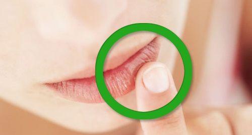 symptômes à surveiller pour traiter carrences