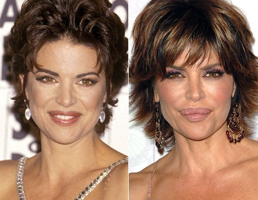 Lisa Rinna before and after her lip surgery. She recently had another one performed to reduce her lips.