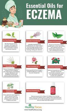 Eczema essential oils for eczema infographic...