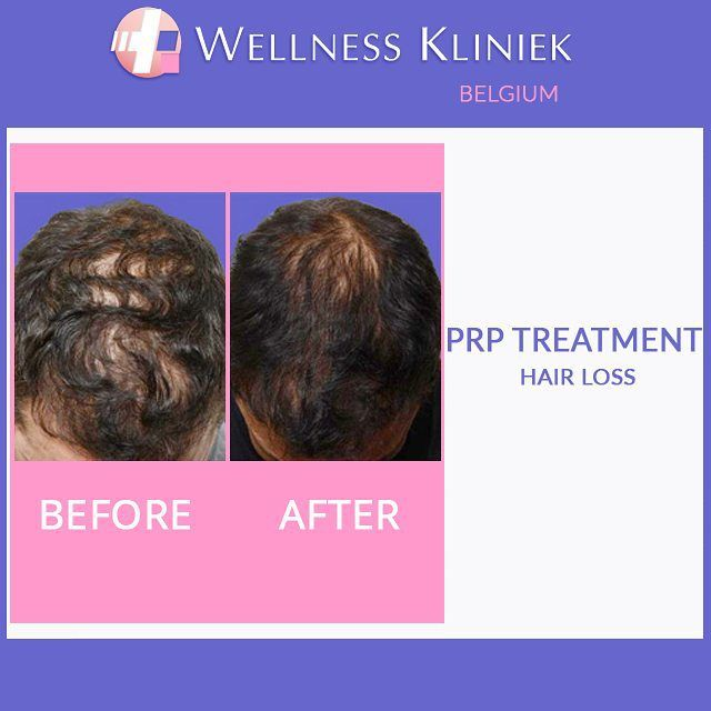 Cosmetic surgery before and after - Wellness_kliniek Belgium PRP treatment for hair loss: #PRP Platelet Rich Plasma therapy #hair #restoration treatment. Visit the #wellnesskliniek for lots of info, before and after photos and full #pricelist on: http://www.wellnesskliniek.com/en/hair/prp-treatment. Get all your queries about #hairloss treatment answered. #cosmeticsurgery, #hair loss therapy, #before_and_after photos, #cost, #hairtransplant treatment.