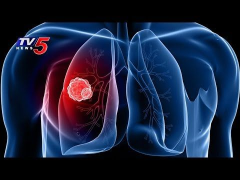 Causes, Symptoms And Treatments For Lung Cancer | Omega Hospitals | Health File | TV5 News - WATCH VIDEO HERE -> http://bestcancer.solutions/causes-symptoms-and-treatments-for-lung-cancer-omega-hospitals-health-file-tv5-news    *** symptoms of lung cancer ***   In Today's Episode of Health File, Watch Special Discussion on Doubts about Cancer Treatments and Suggestions, With Dr Mohan Vamsi, From Omega Hospitals. Watch Health File, A Featured Programme by TV5, Where Doc