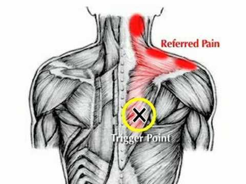 Upper Back Pain or Neck Pain? Simple stretches for instant relief! - YouTube