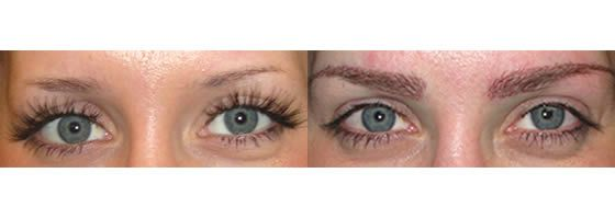 FUE Eyebrow Hair Transplant & Restoration Surgery | Ziering