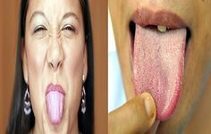 Three Effective And Fast Home Remedies For White Coated Tongue -  The tongue has a big importance in helping swallowing, speaking and of course tasting food, it is one of the strongest muscles in the body, a healthy tongue should be pink in color, once you start noticing a white coat on your tongue then that indicate some health problems that need taking care...