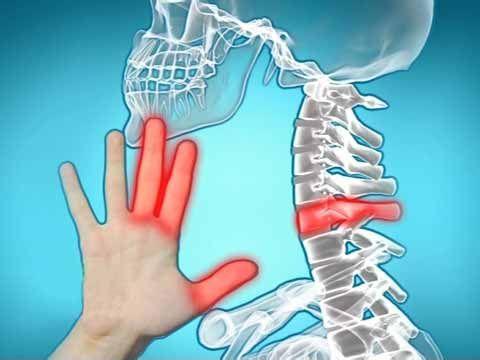 """Julia Plouff: """"Nové řešení na bolest kloubů bylo nalezeno! Tento nový objev Vás dokáže zbavit bolesti kloubů. """"."""