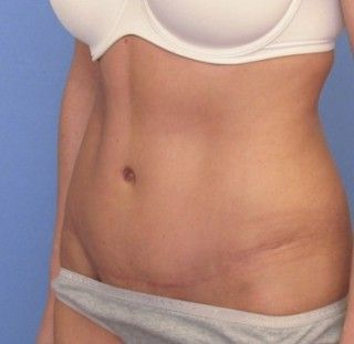 This Is A Slightly Wide Post Tummy Tuck Belly Button But