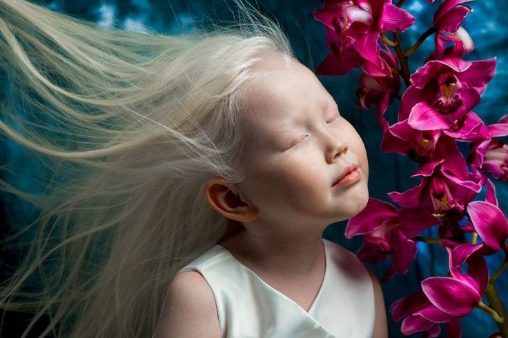Gewild door de mode-industrie: achtjarig meisje met albinism... - Het Nieuwsblad: http://www.nieuwsblad.be/cnt/dmf20170429_02858817