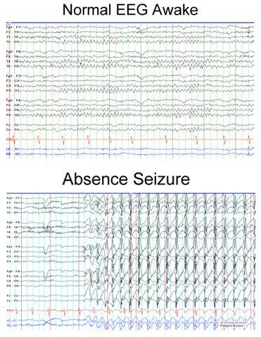 EEG of an absence seizure