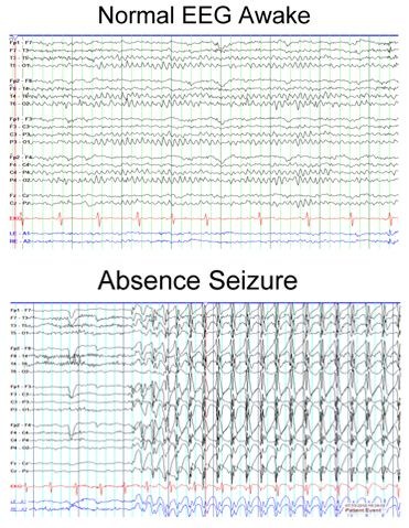 absence seizure in adults