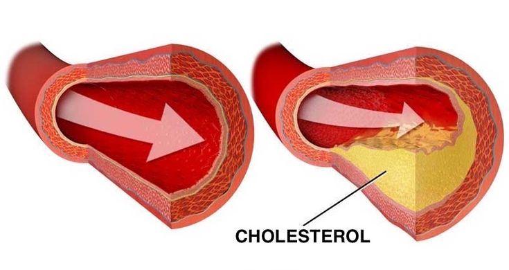 Máte upchaté cievy alebo trpíte chorobami srdca? Prečistite si svoje cievy s týmito prírodnými potravinami a zbavte sa rizika infarktu.