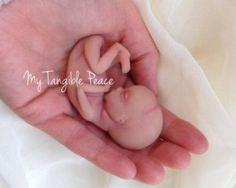 45 best images about Miscarriage on Pinterest | Miscarriage ...