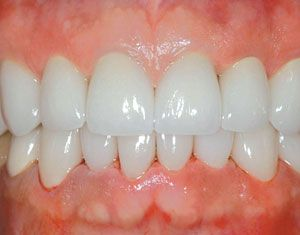 What's the best way to handle a broken porcelain or PFM restoration? Dr. Robert Lowe's answer is porcelain veneers: http://www.glidewelldental.com/dentist/chairside/issues/v7-2/clinical-techniques1.aspx