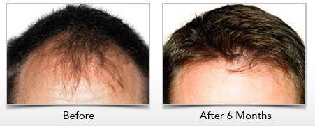Learn how #ARTAS Robotics works here and get your hair back!