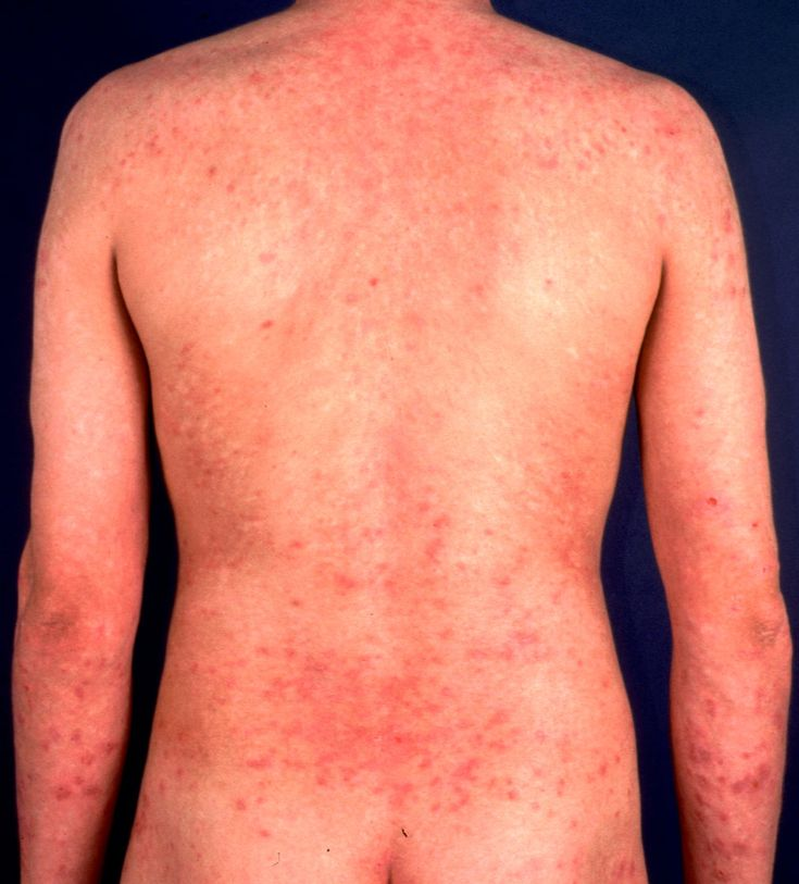 Allergic Contact Dermatitis Daily Health Posts Contact
