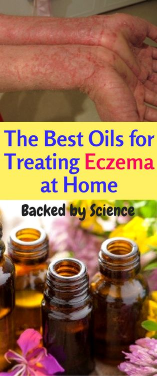 The Best Oils for Treating Eczema at Home (Backed by Science) - Workout Hit