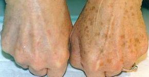 Увидев коричневые пятнышки на руках, она ужаснулась! Хорошо, что под рукой было это…