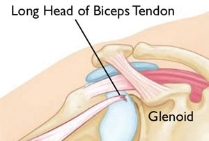 Biceps Tendon Tear at the Shoulder-OrthoInfo - AAOS