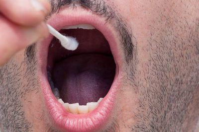 How to Heal Tongue Sores. Injuries to the tongue are extremely uncomfortable. They can also interfere with eating, talking and smiling. Tongue sores are small ulcers caused by a number of factors including hot foods, accidental biting, viral infections or allergies. Most tongue sores will heal on their own within a few weeks; however the pain can...
